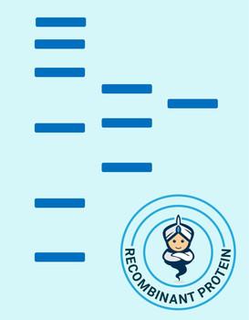 Human CD6 Recombinant Protein hFc Tag HDPT0431