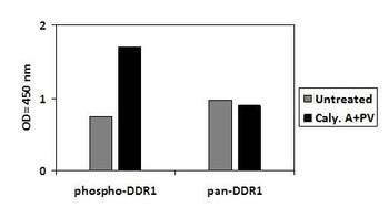 Human Phospho-DDR1 Y792 and Total DDR1 PharmaGenie ELISA Kit SBRS1784