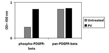 Human Phospho-PDGFR-beta Y751 and Total PDGFR-beta PharmaGenie ELISA Kit SBRS1927