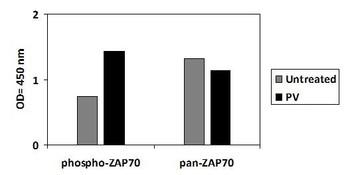 Human Phospho-ZAP70 Y493 and Total ZAP70 PharmaGenie ELISA Kit SBRS2021