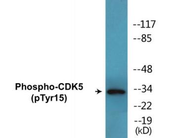 CDK5 Phospho-Tyr15 Colorimetric Cell-Based ELISA Kit