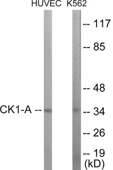 Cell Cycle ELISA Kits CKI-alpha Colorimetric Cell-Based ELISA