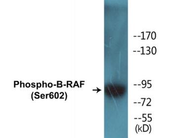B-RAF Phospho-Ser602 Colorimetric Cell-Based ELISA Kit