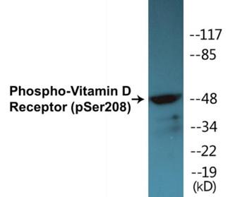 Vitamin D Receptor Phospho-Ser208 Colorimetric Cell-Based ELISA Kit