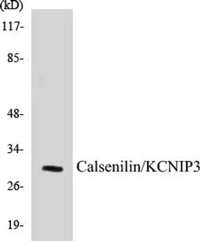 Cell Death Calsenilin/KCNIP3 Colorimetric Cell-Based ELISA Kit