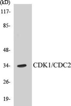 Cell Death CDK1/CDC2 Colorimetric Cell-Based ELISA Kit