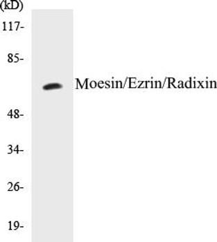 Immunology Moesin/Ezrin/Radixin Colorimetric Cell-Based ELISA Kit
