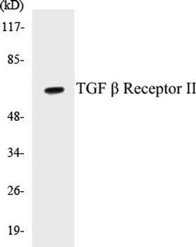 Cell Death TGF beta Receptor II Colorimetric Cell-Based ELISA Kit