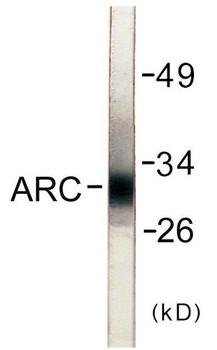 Cell Death ARC Colorimetric Cell-Based ELISA