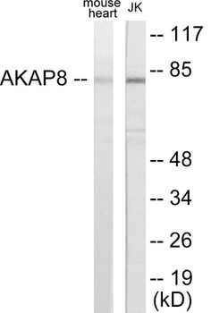 Immunology AKAP8 Colorimetric Cell-Based ELISA