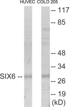 SIX6 Colorimetric Cell-Based ELISA