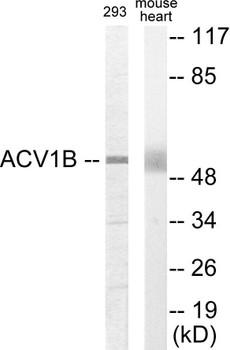 ACV1B Colorimetric Cell-Based ELISA
