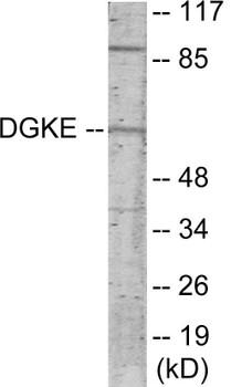DGKE Colorimetric Cell-Based ELISA
