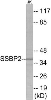 SSBP2 Colorimetric Cell-Based ELISA