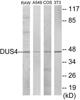 DUSP4 Colorimetric Cell-Based ELISA