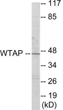 Cell Cycle ELISA Kits WTAP Colorimetric Cell-Based ELISA