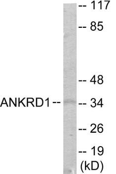 ANKRD1 Colorimetric Cell-Based ELISA