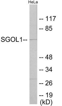 Cell Cycle ELISA Kits SGOL1 Colorimetric Cell-Based ELISA