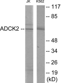 ADCK2 Colorimetric Cell-Based ELISA