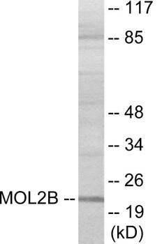 MOBKL2B Colorimetric Cell-Based ELISA