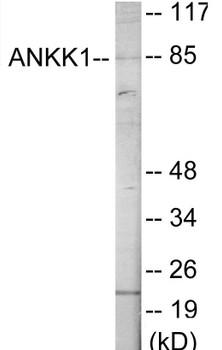 ANKK1 Colorimetric Cell-Based ELISA