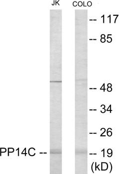 PPP1R14C Colorimetric Cell-Based ELISA