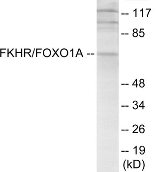 Cell Death FKHR Colorimetric Cell-Based ELISA