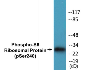 S6 Ribosomal Protein Phospho-Ser240 Colorimetric Cell-Based ELISA Kit