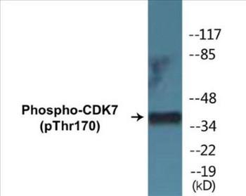 CDK7 Phospho-Thr170 Colorimetric Cell-Based ELISA Kit