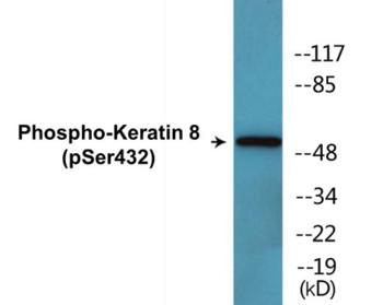 Keratin 8 Phospho-Ser432 Colorimetric Cell-Based ELISA Kit
