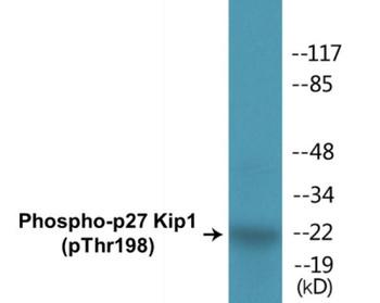 p27 Kip1 Phospho-Thr198 Colorimetric Cell-Based ELISA Kit