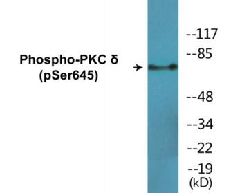PKC delta Phospho-Ser645 Colorimetric Cell-Based ELISA Kit