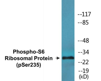 S6 Ribosomal Protein Phospho-Ser235 Colorimetric Cell-Based ELISA Kit