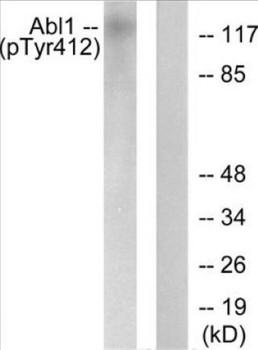 Phospho-Abl Tyr412 In-Cell ELISA