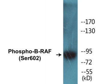 B-RAF Phospho-Ser602 Fluorometric Cell-Based ELISA Kit