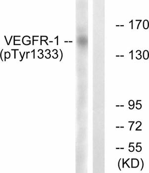 VEGFR1 Phospho-Tyr1333 Fluorometric Cell-Based ELISA Kit