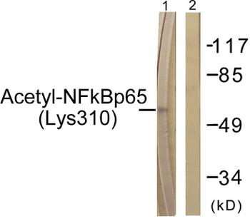 NF-kappaB p65 Acetyl-Lys310 Fluorometric Cell-Based ELISA Kit