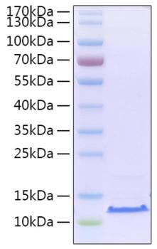 Recombinant SARS-CoV-2 Envelope E Protein
