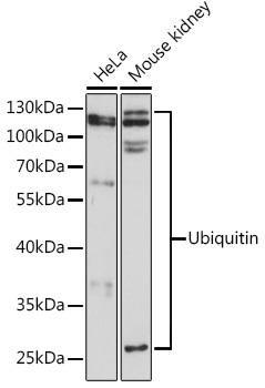 Cell Biology Antibodies 1 Anti-Ubiquitin Antibody CAB0162