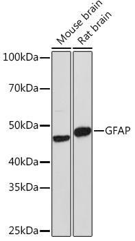 Cell Biology Antibodies 1 Anti-GFAP Antibody CAB0237
