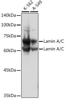 KO Validated Antibodies 1 Anti-Lamin A/C Antibody CAB0249KO Validated
