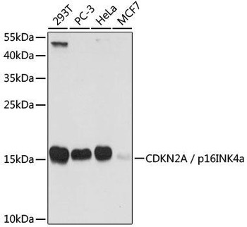KO Validated Antibodies 1 Anti-CDKN2A / p16INK4a Antibody CAB0262KO Validated