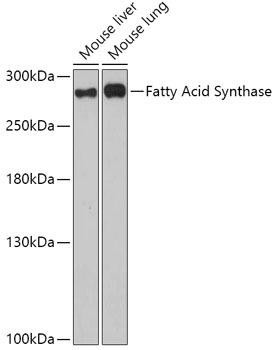 Metabolism Antibodies 1 Anti-Fatty Acid Synthase Antibody CAB0461