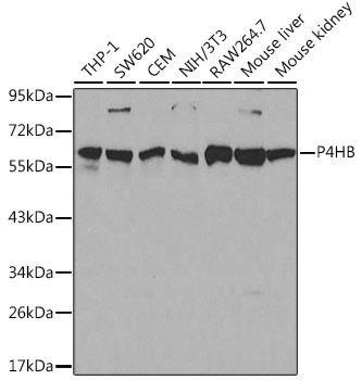 KO Validated Antibodies 1 Anti-P4HB Antibody CAB0692KO Validated