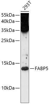Signal Transduction Antibodies 1 Anti-FABP5 Antibody CAB0947