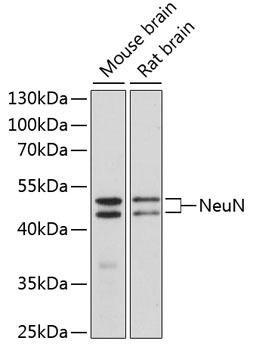 KO Validated Antibodies 1 Anti-NeuN Antibody CAB0951KO Validated