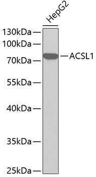 Metabolism Antibodies 1 Anti-ACSL1 Antibody CAB1000