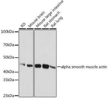 Cell Biology Antibodies 1 Anti-alpha smooth muscle actin Antibody CAB1011