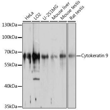 Cell Biology Antibodies 1 Anti-Cytokeratin 9 Antibody CAB10119