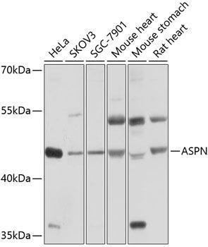 Signal Transduction Antibodies 1 Anti-ASPN Antibody CAB10311